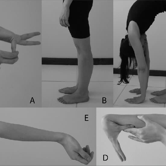 Beighton score for joint laxity examples